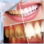 Set za beljenje zob Clearwhite